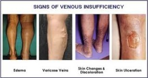 Signs of venous insufficiency