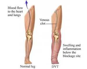 Symptoms of Deep Vein Thrombosis