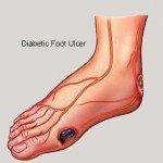Diabetes Mellitus - Diabetic Foot Ulcer
