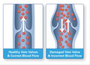 venous diseases
