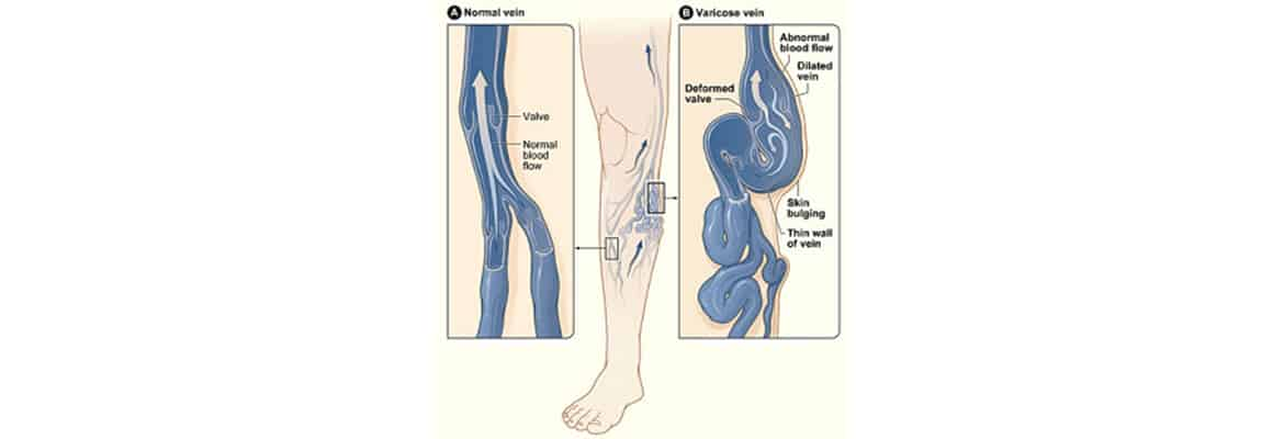 Common queries for Varicose Veins