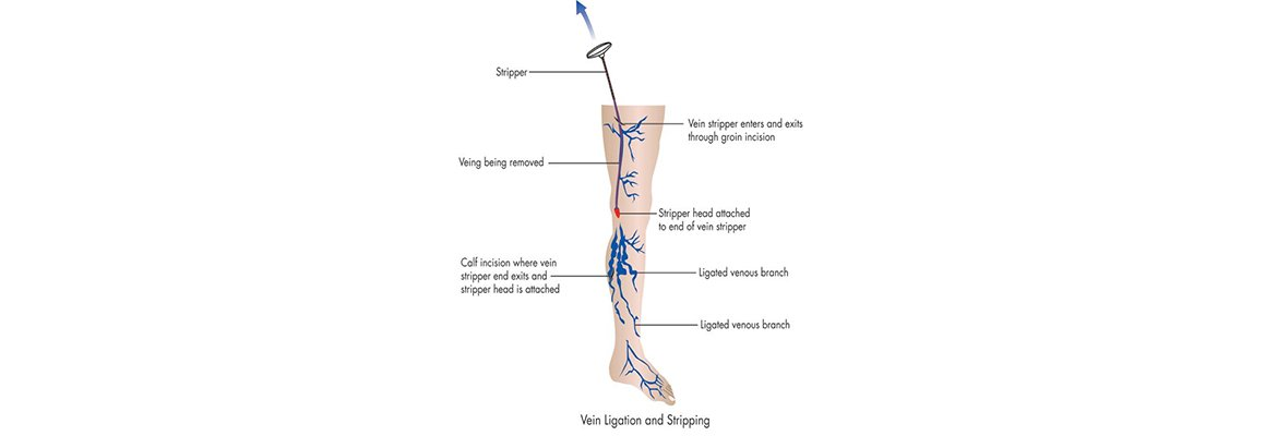 Varicose Veins Treatment choices