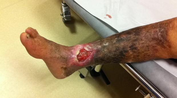 Severe leg ulcer