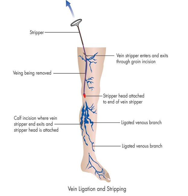 Vein ligation and stripping
