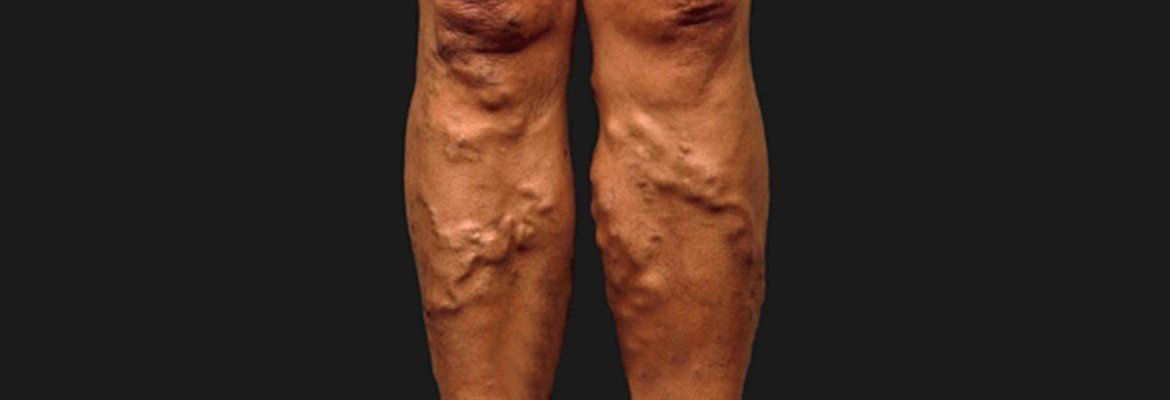 Varicose Veins – a Real Medical Problem?