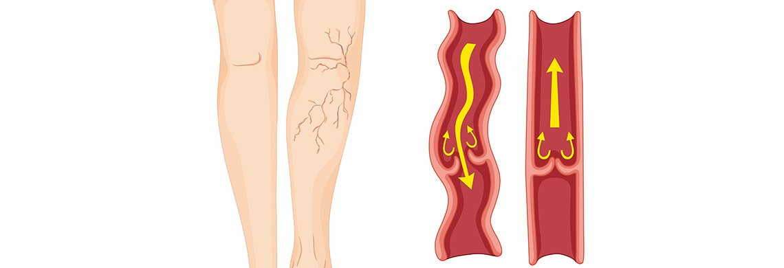 "Laser, Radiofrequency, Chemicals and ""Glue"" what treatment is best for my Varicose veins?"